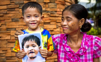 operation smile ph iloilo